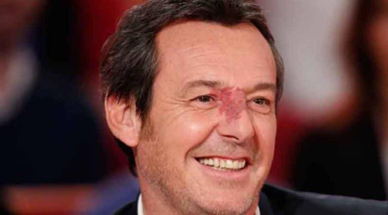 Jean-Luc Reichmann - l'origine de sa tache de vin sur le nez dévoilée